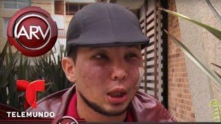 Joven quería ser más guapo y terminó desfigurado | Al Rojo Vivo | Telemundo