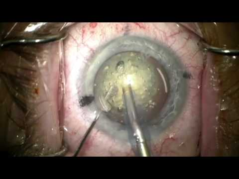 Femto Laser Assisted Cataract Surgery