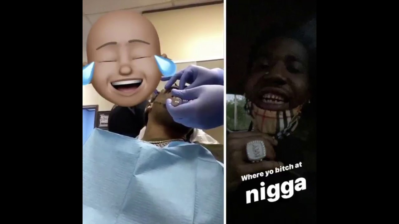 YFN Lucci Gets His Diamond Grill Removed And Shows Off His ...