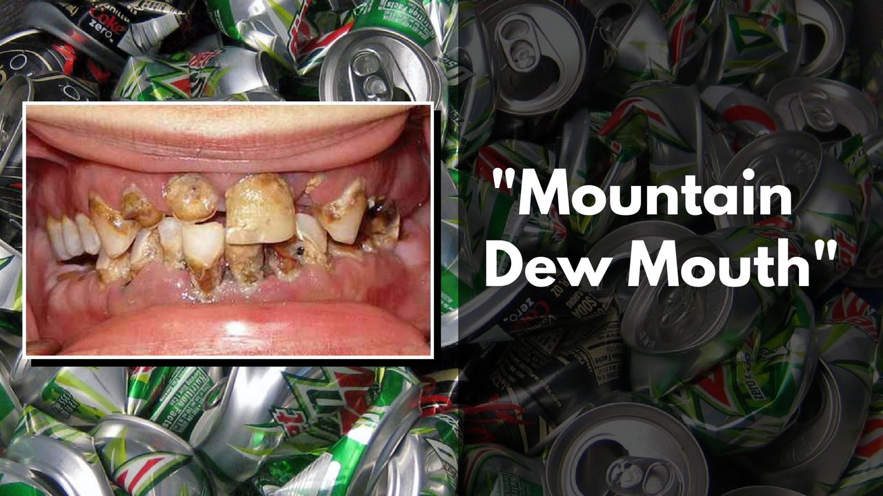 Image result for mountain dew mouth