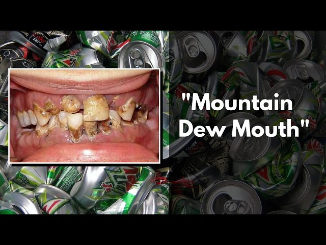 Image result for mountain dew mouth images