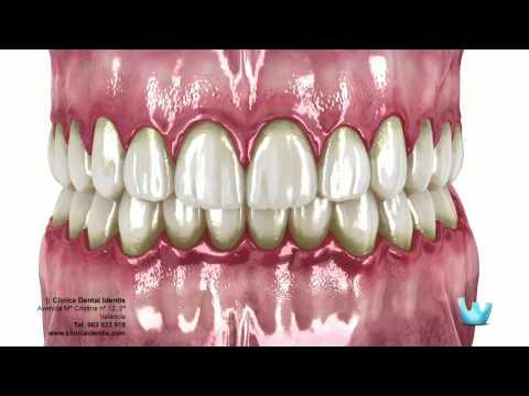 La enfermedad periodontal: Gingivitis y Periodontitis