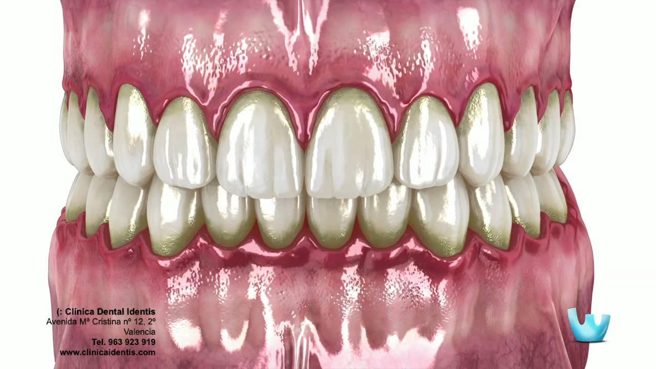 patogenia de la enfermedad periodontal slideshare