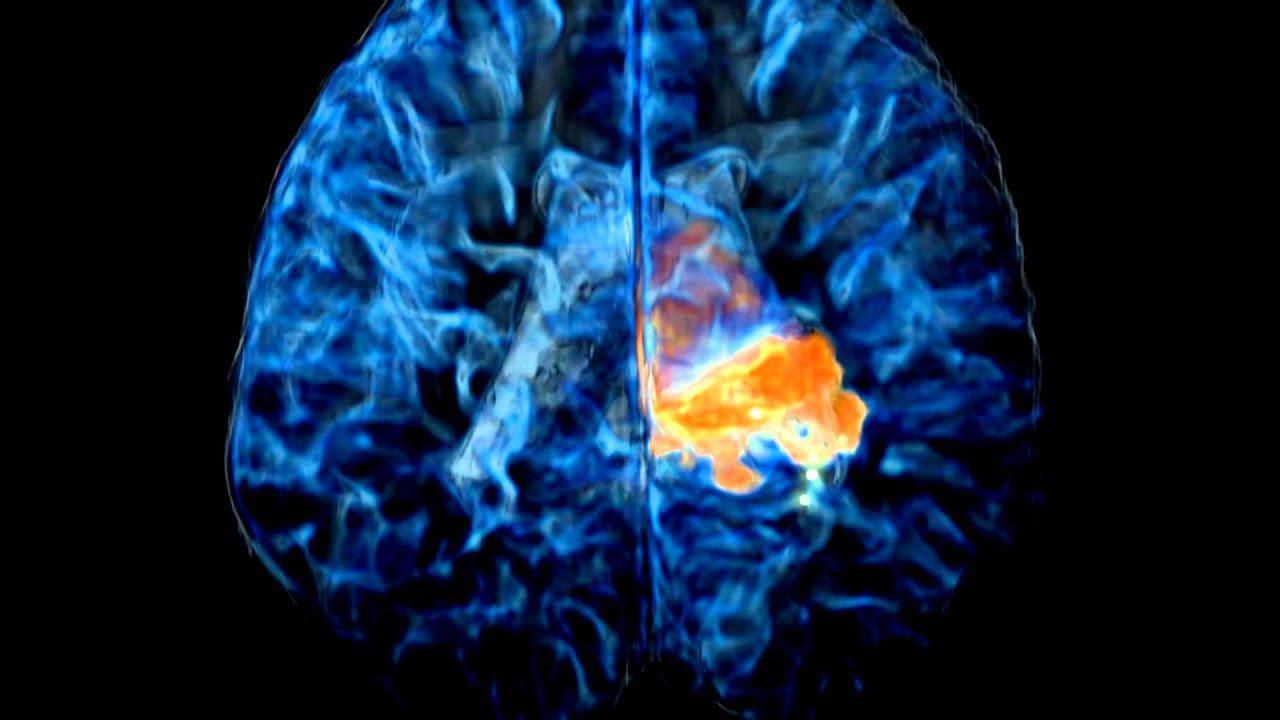 tumeur au cerveau et síntomas de diabetes