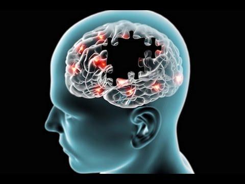 Neurologist Discusses Parkinson's Disease Basics