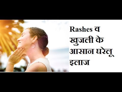 Home Remedies For Skin Rashes & Itching, How To Treat Rashes & Itching