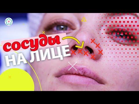Удаление СОСУДОВ на лице лазером: до и после ♥♥♥