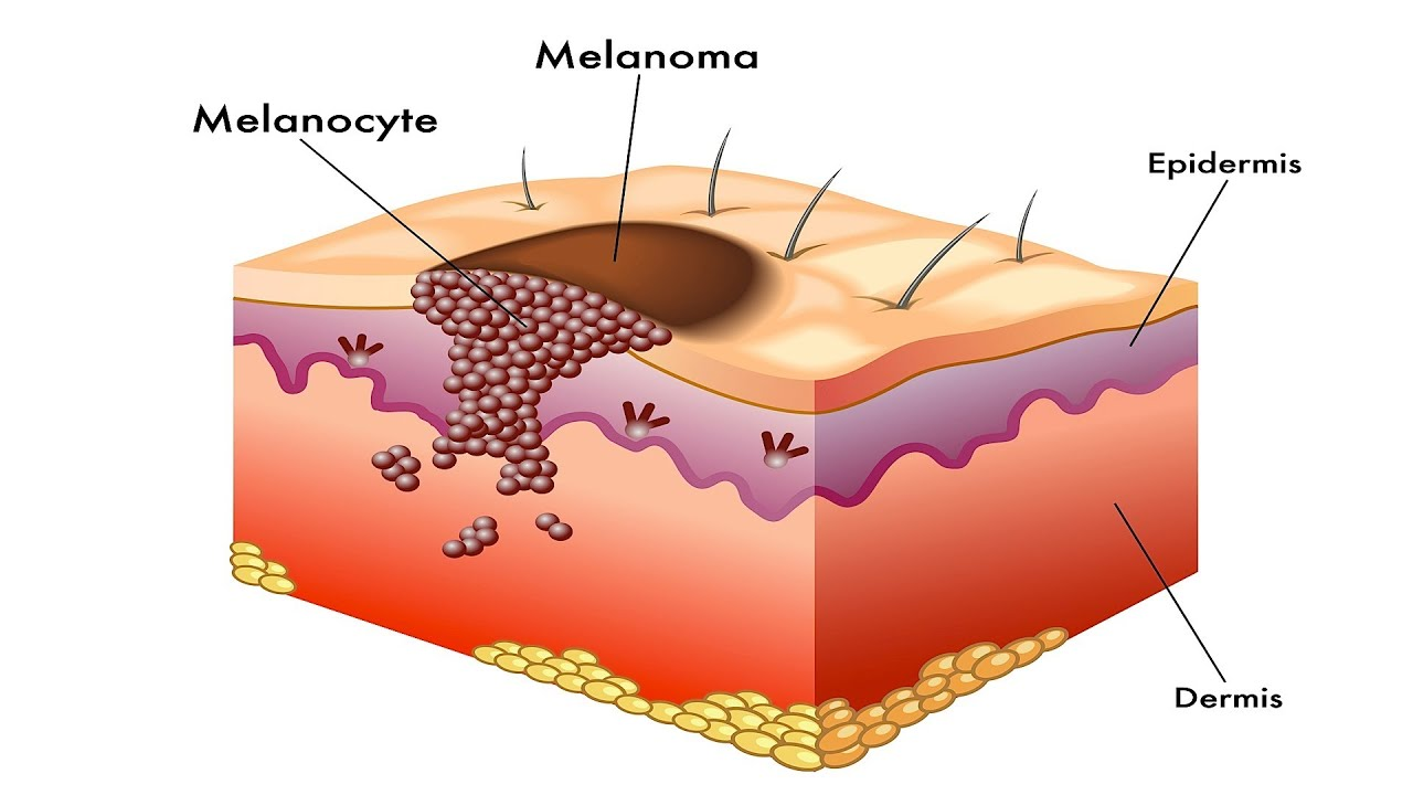 body diagram skin cancer what is melanoma? | skin cancer - youtube arm diagram skin