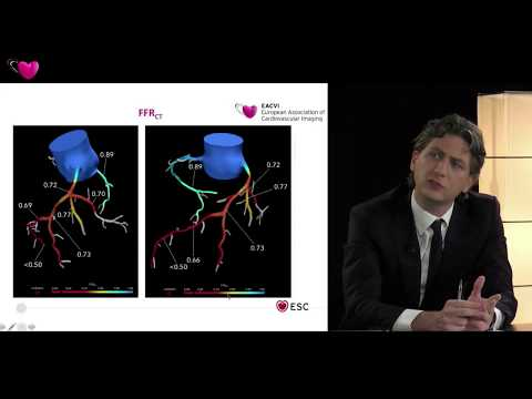EACVI free webinar: Current practice and state of the art in coronary flow measurements