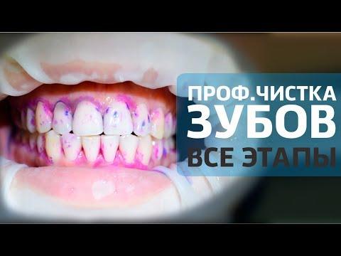 Как происходит профессиональная чистка зубов видео