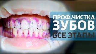 Чистка зубов AIR FLOW - все этапы | Как проходит профессиональная чистка зубов | Дентал ТВ