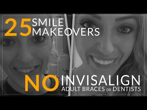 Invisalign Alternative!- No Dentist Smile Makeovers! Brighter Image Lab