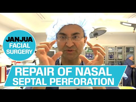 REPAIR OF NASAL SEPTAL PERFORATION (REVISION) - DR. TANVEER JANJUA - NEW JERSEY