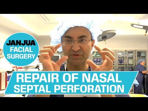 REPAIR OF NASAL SEPTAL PERFORATION (REVISION) - DR. TANVEER JANJUA - NEW JERSEY