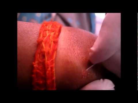 best way to treat molluscum contagiosum