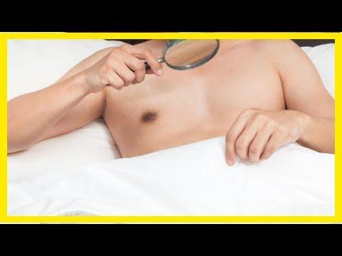 sintomicina sul pene
