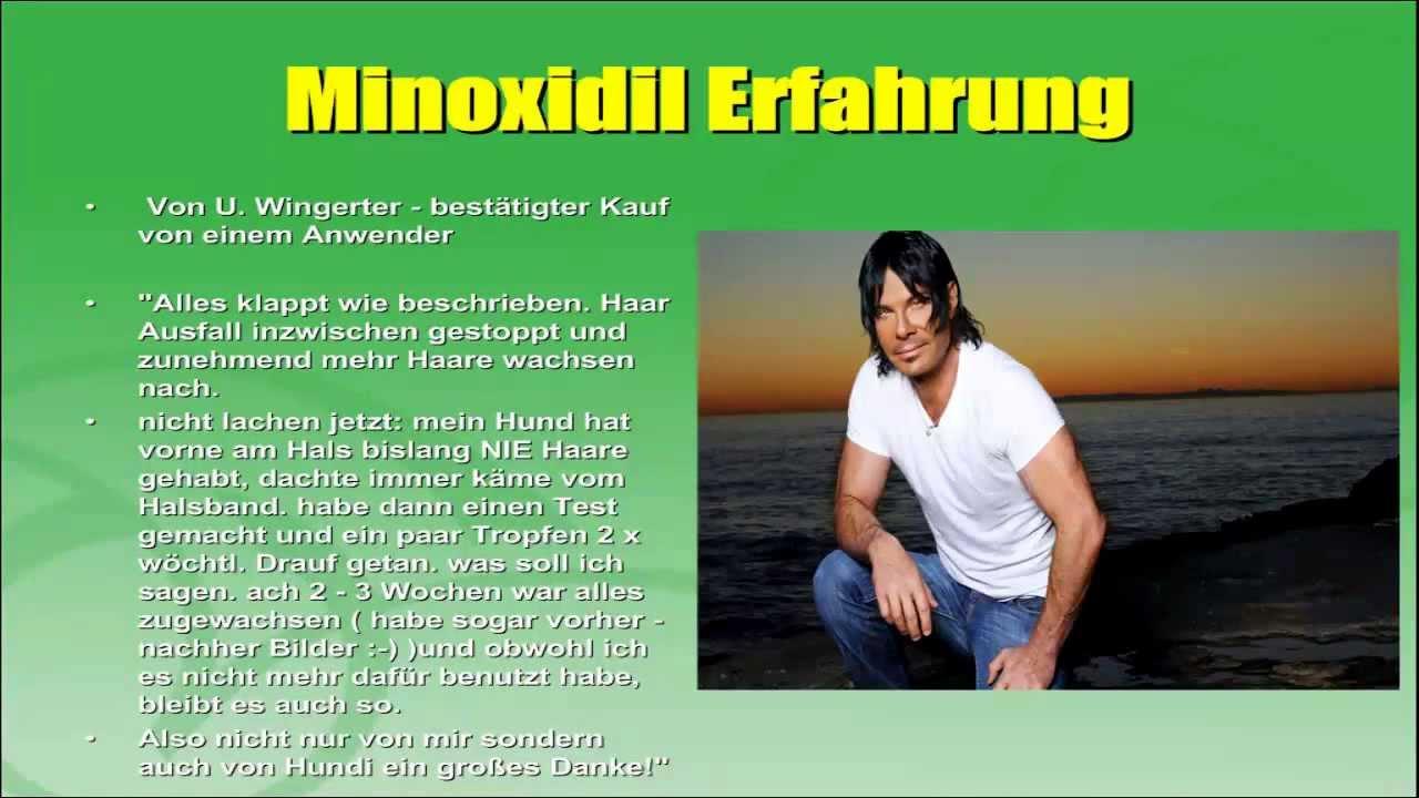 Minoxidil Erfahrung Männer
