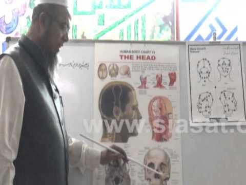 Hijama Benefits for Head part 1 - YouTube