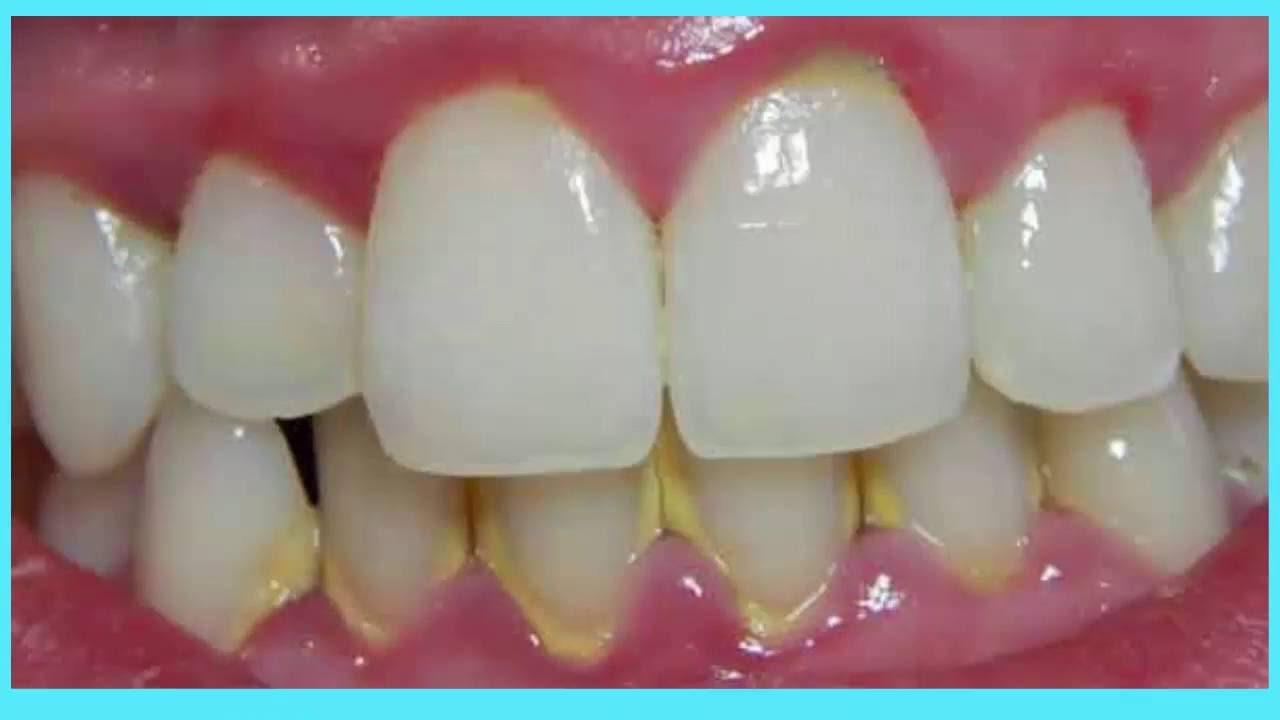 Recetas caseras para eliminar el sarro de los dientes, que