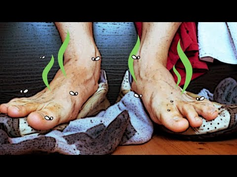 Do you suffer with sweaty smelly feet? | Benjamin Marble DPM