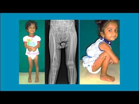 Biology of Limb Lengthening