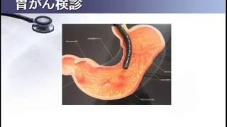 スキルス性胃がんの特徴をわかりやすく