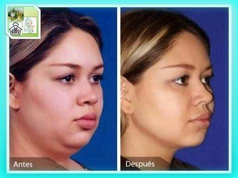 Tips para adelgazar la cara y la papada de forma natural, sin cirugia ni maquillaje