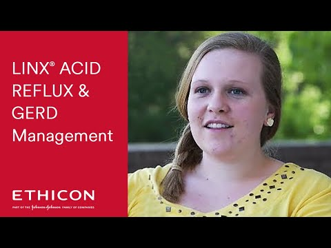 LINX Acid Reflux Management - Bailey's GERD Testimonial | Ethicon
