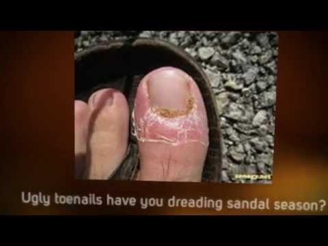 Fungus toes. Nail fungus remedies