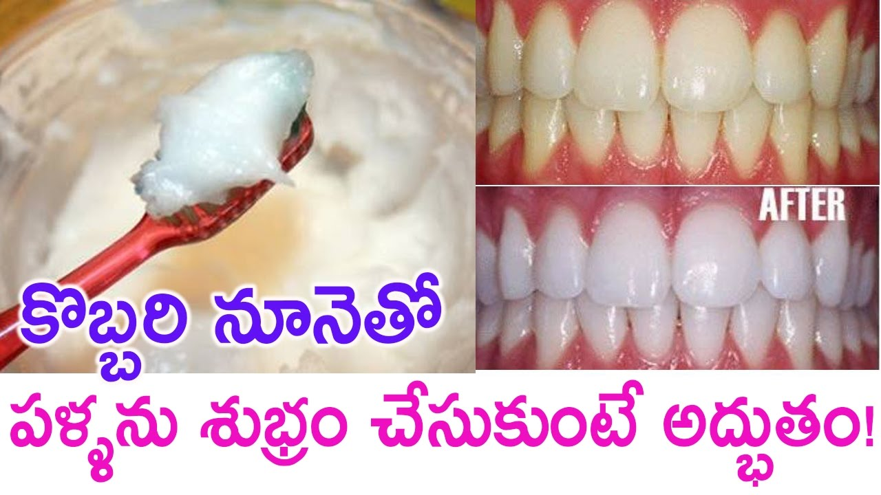 why you should brush your teeth with coconut oil benefits of coconut oil pulling remix king. Black Bedroom Furniture Sets. Home Design Ideas
