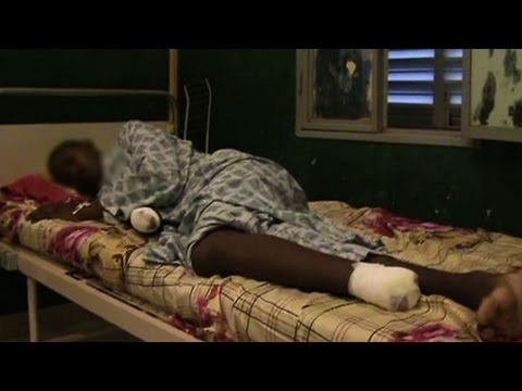 Amputations as punishment in Islamist northern Mali