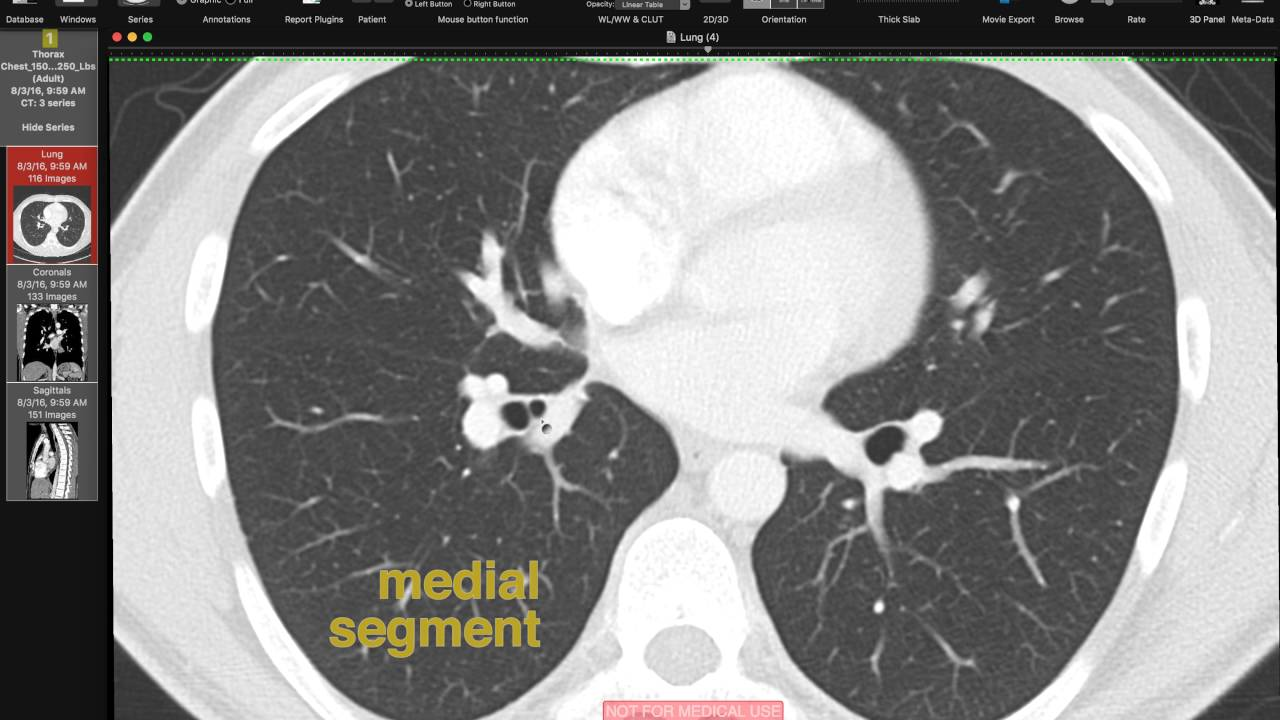 Lobar and Segmental Lung Anatomy on CT - YouTube