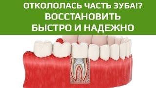 Зубные коронки: зубная коронка при трещине и потере части зуба под десной(, 2016-09-09T09:19:48.000Z)