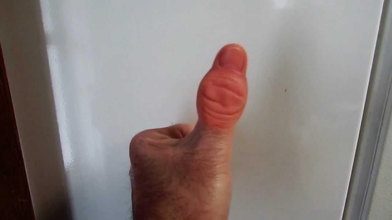 Home Remedy for a Red & Swollen Fingernail | LIVESTRONG.COM