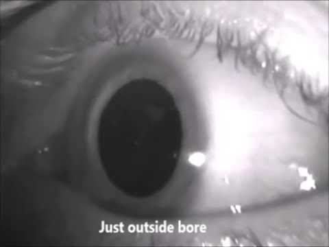 Nystagmus during MRI