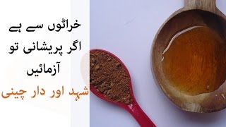 Honey and Cinnamon for Snoring | Home Remedy for Snoring | Apnea Treatment