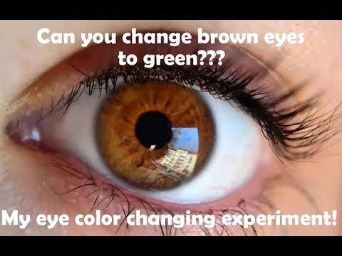 Eye changing journey from brown to hazel!