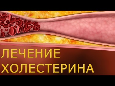 Холестерин. 27 способов снизить и удерживать его на низком