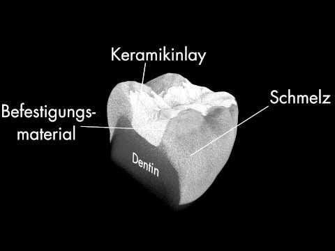 3D-Röntgenmikrotomografie | Universitätszahnmedizin Leipzig