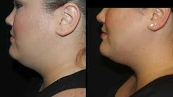 NO MORE DOUBLE CHIN - CoolSculpting Mini Treatment to the Chin with Tanya Patron, PA-C