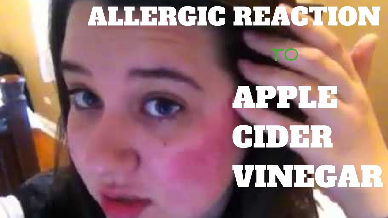 Allergic Reaction To Apple Cider Vinegar | Enough To Make