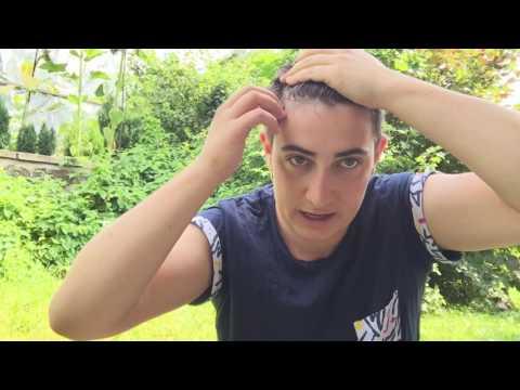 10 Wochen auf Testo - Geheimratsecken und Haare