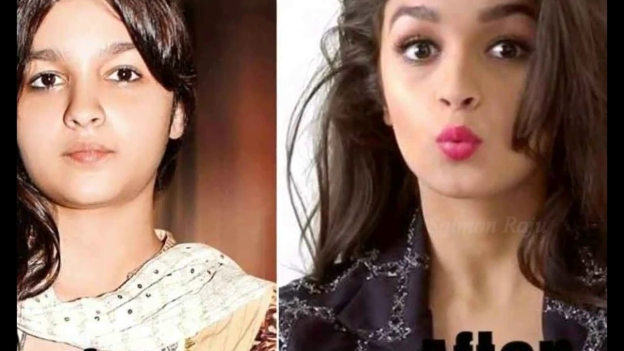 top 40 indian celebrities before and after plastic surgery - youtube