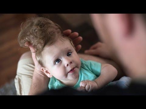 Un bebe nació con el cerebro fuera de la cabeza