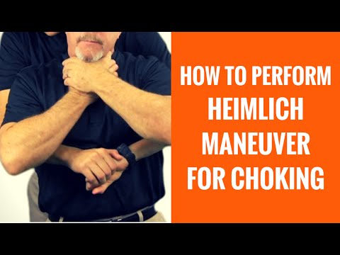 How To Do The Heimlich Maneuver For Choking