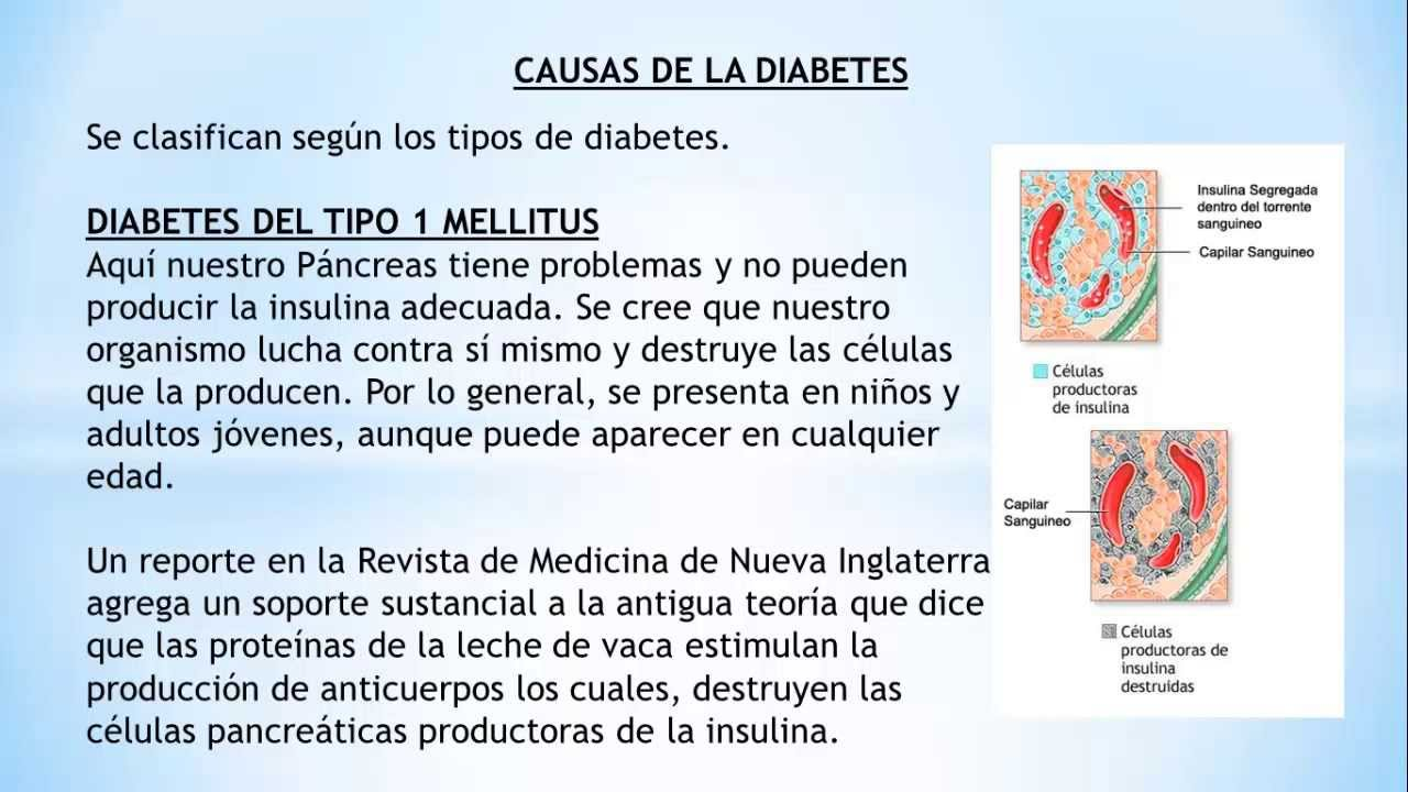 Causas de la Diabetes Mellitus - Que es la diabetes