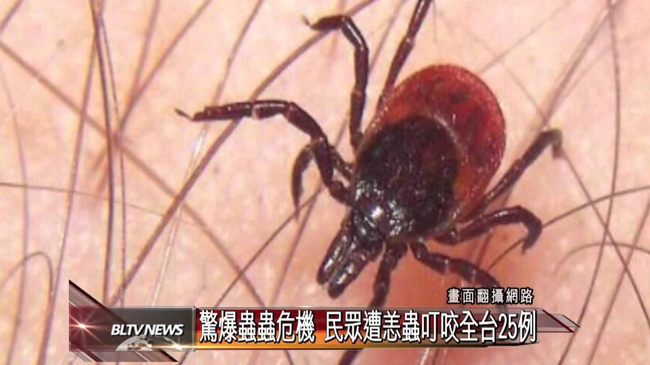 20140327 驚爆蟲蟲危機 民眾遭恙蟲叮咬全臺25例 - YouTube