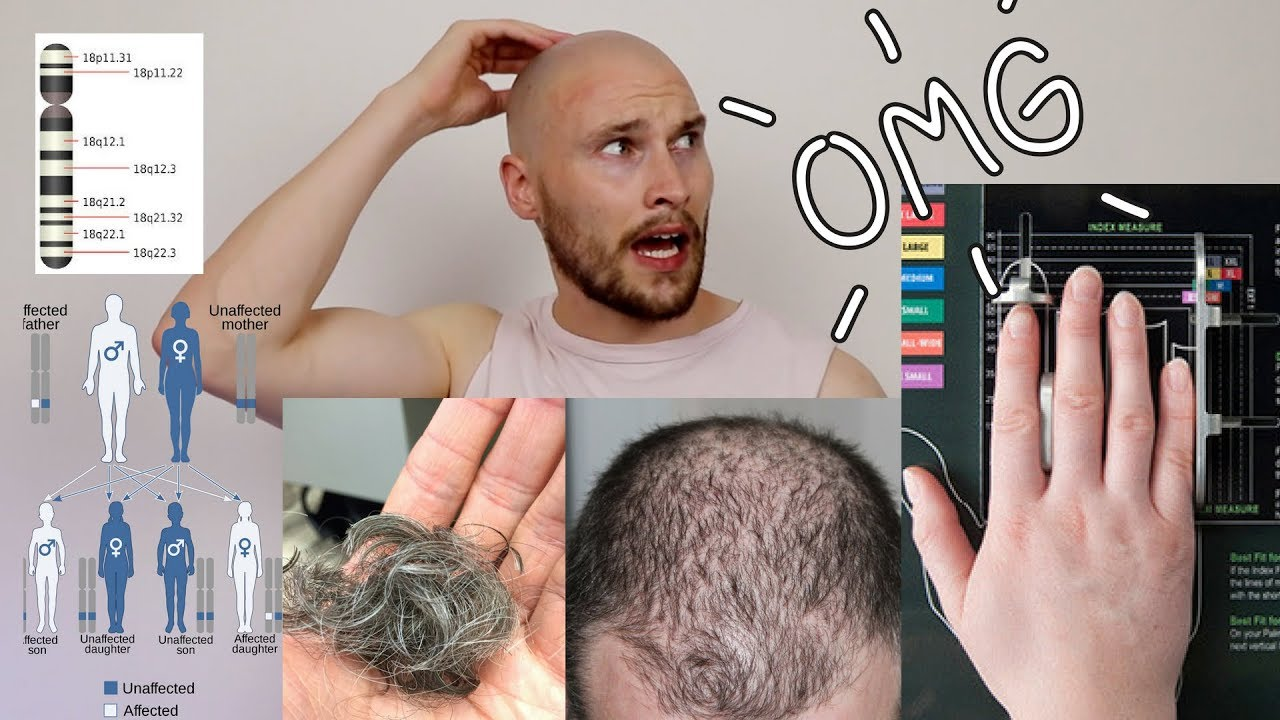 Early Male Pattern Baldness Signs Unique Decorating Ideas