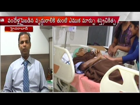 Rare Hip Replacement Operation to Above 100 Years Old Woman in Hyderabad