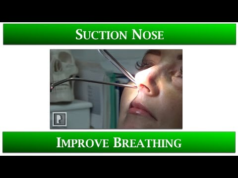1st Appointment after Rhinoplasty- 4 Suctioning your Nose to improve breathing